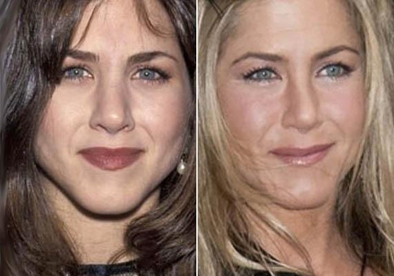 Jennifer Aniston karrierje hajnalán még erősebb, dominánsabb, ám kimondottan hozzá illő orral rendelkezett. Ma már apró, fitos orra van. Megosztja a közönséget, kinek melyik tetszett jobban, a plasztika mindenesetre abszolút jól sikerült.