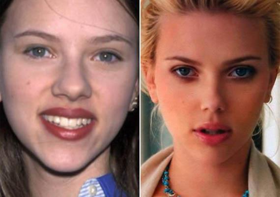 Scarlett Johansson gyerekkori képén még sokkal szélesebb és dominánsabb orral rendelkezett, mint ma. Mindkét verzió bájos, a döntés nem volt hibás, még ha nem is volt feltétlenül szükségszerű.
