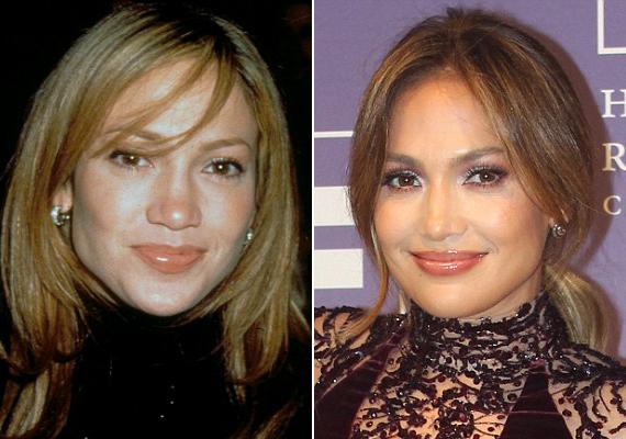 Jennifer Lopez az állítólagos plasztikai műtétek előtt is szép volt, a kis igazításokkal pedig kirobbanó formába hozták.