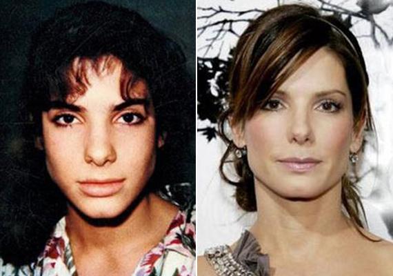 Sandra Bullock is az orrát műttette meg, bár ő ezt nem tagadta.