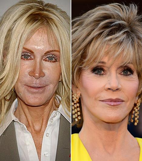 Joan Van Ark és Jane Fonda  Joan Van Ark tipikus példája annak, milyen, amikor egy sztár nem tud a normális keretek között maradni. A tőle 5 évvel idősebb Jane Fonda ezzel szemben a jól megválasztott beavatkozások miatt még napjainkban is ragyogóan fest. Kapcsolódó cikk: Te elhiszed, hogy 75 éves? Szűk farmerban jelent meg Jane Fonda
