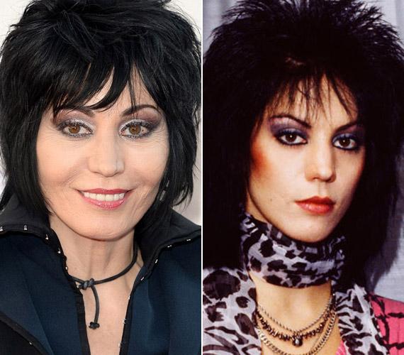 Az énekesnő mindenáron szerette volna megőrizni fiatalkori arcát, de úgy tűnik, már a sok botox sem segít.