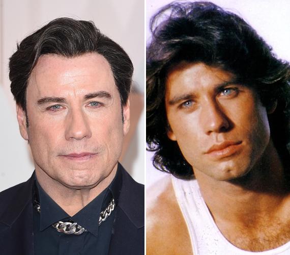 A bal oldalon láthatod John Travolta jelenlegi arcát, amelyről bizony nem sok érzelmet lehet leolvasni. Remélhetőleg ezt ő is belátja, és többé nem megy fiatalító kezelésekre.