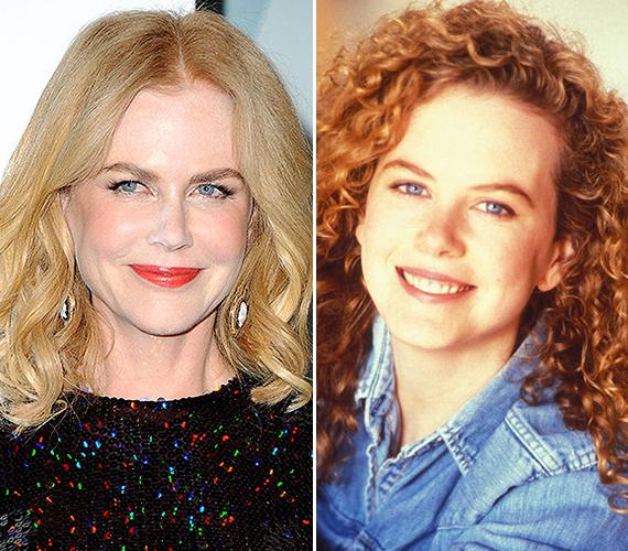 A 48 éves Nicole Kidman egy időben teljesen bepánikolt a ráncai miatt, legalábbis erre enged következtetni az, amit az arcával tett. A színésznő mostanra olyan, mint egy viaszbaba.