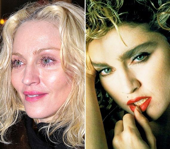Az 56 éves Madonna úgy gondolja, hogy a botox és a kamaszokra jellemző viselkedés örökké fiatalon fogja tartani, ám úgy tűnik, ebben sajnos nincs igaza. Az arca olyan, akár Travoltáé.