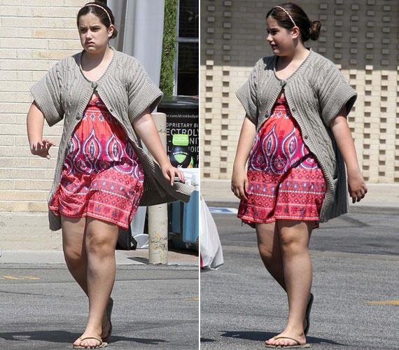 Ezen a pontosan egy évvel ezelőtt készült fotón a kislány még ducibb: vaskosak lábain és főleg a hasán látszik, mennyire elhízott.