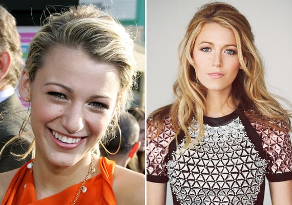 Blake Lively orra 2012-ben lett lényegesen kisebb. A színésznő egyelőre tagadja a műtéti beavatkozást, de szakértők szerint nem csak a kamaszkor utáni súlyvesztés okozta a változást.