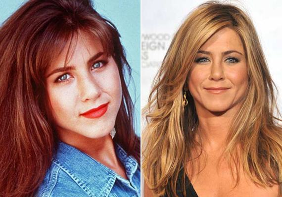 2007-ben Jennifer Aniston is kés alá feküdt orrsövényferdülése miatt. Öröm az ürömben, hogy a műtét során az orra is jelentősen kisebb lett.