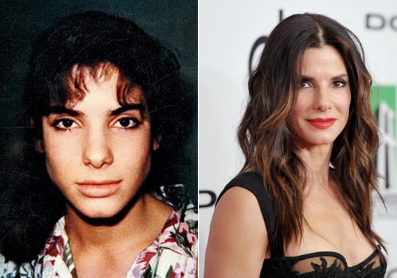 Sandra Bullock vonásai sokkal lágyabbak és nőiesebbek lettek az orrműtéte után. Fiús arca finomabb ívet kapott, de mégsem tűnik művinek az új orra. Nagyon szép munkát végzett a sebész.