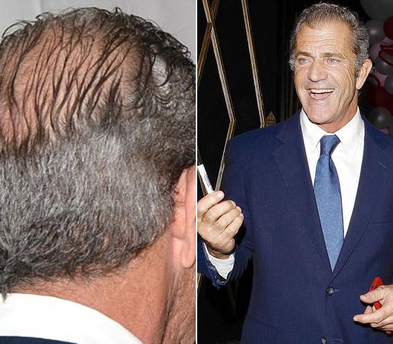 Mel Gibsonon kezd látszódni az idő múlása.