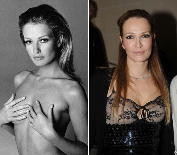 2009 júliusában arról számolt be a Daily Mail, hogy a szupermodell megfenyegette plasztikai sebészét - ami teljesen érthető a róla készült fotókat látva.