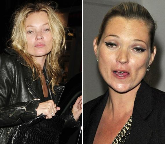 Az előző képen láthattad, hogy a smink mennyit szépíthet egy arcon, de sajnos nem minden esetben. Kate Moss sokszor keveredett botrányba túlzott alkoholfogyasztása miatt, ebben az állapotban még neki sem segített a vakolat.