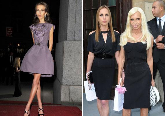 Allegra Versace, Donatella Versace lánya öt évvel ezelőtt gebén jelent meg a vörös szőnyegen - balra. Elmondta, korábban nehezen dolgozta fel, hogy a világhírű divattervező, Gianni Versace unokahúgaként sok figyelmet kap. Állandóan meg akart felelni a nyilvánosságnak és a sajtónak, emiatt pedig alig evett. A jobb oldali fotón látszik, még mindig vékony, de már nem olyan piszkafa, mint a betegség idején.