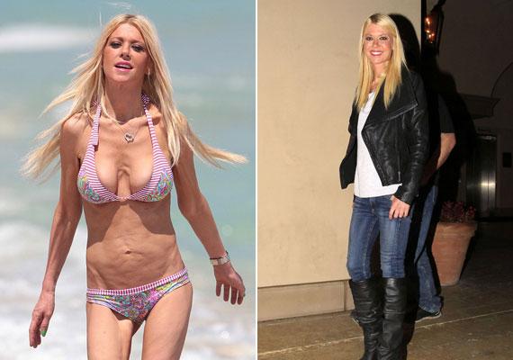 Tara Reid korábbi bikinis fotóin szörnyülködött az internet: akkor csont és bőr az egykori szőke bombázó. A jobb oldali fotón, amit pár hónapja készítettek róla, már pár kilóval többnek látszik.