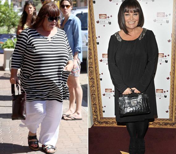 Az 55 éves Dawn French 60 kilót hízott egy év alatt.