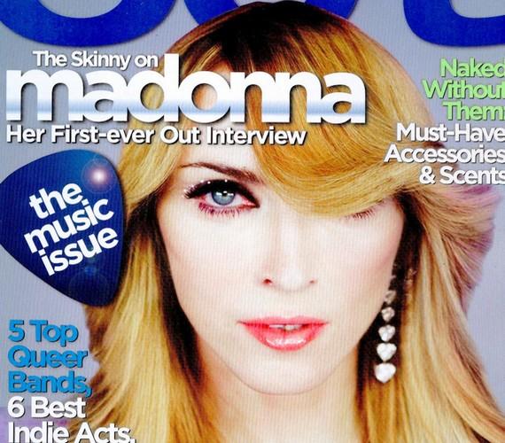 Madonna feje kissé lelapult a fotózás és a címlapra kerülés között.