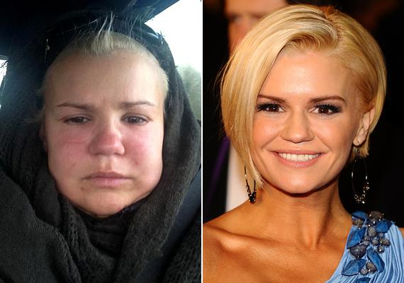A 32 éves énekesnő arca feldagadt, a tű nyomai pedig begyulladtak az arcán.