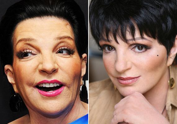 Liza Minnelli arcát is átszabták, a szemöldöke földöntúli magasságokba került és egész arca eltorzult.