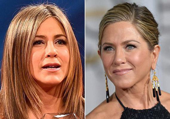 Jennifer Aniston 2014-es fotója és az idei Golden Globe-gálán készült képe között is nagy a különbség.