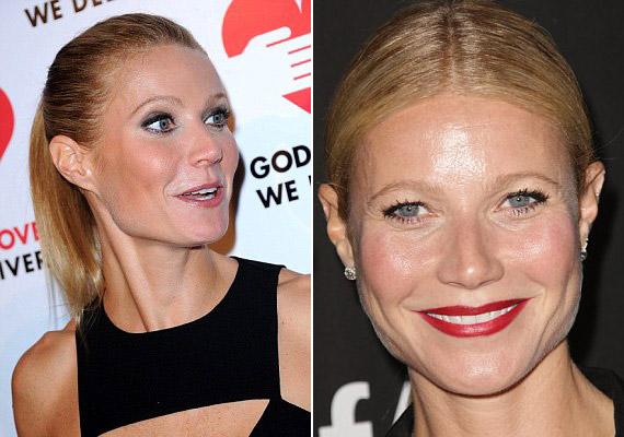 Gwyneth Paltrow bevallotta, hogy túlzásba vitte a botoxot, mert félt az öregedéstől. A csak 42 éves színésznő azt mondta, annyira fél a sebészi késtől, hogy drasztikus beavatkozásra sohasem vállalkozna, de a botoxot igazán kedvelte.