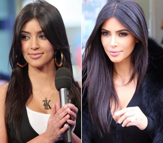 A doktor szerint Kim Kardashian az állát is megoperáltatta, hogy ne tűnjön annyira kereknek az arca. Nem titok, hogy a második gyermekével várandós sztár már az ajkait is többször feltöltette.
