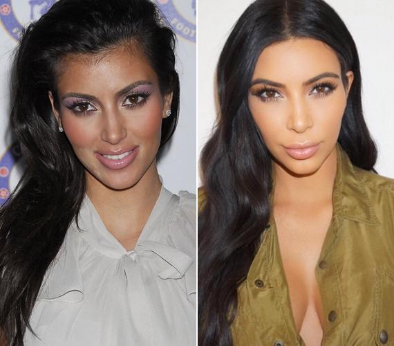Kim Kardashian a People magazinnak adott egyik interjújában elárulta, hogy utálta eredeti hajvonalát, a homloka felett állandóan ott lebegtek az apró babahajak. Néhány éve úgy döntött, lézeres kezeléssel tüntetni el őket örökre.