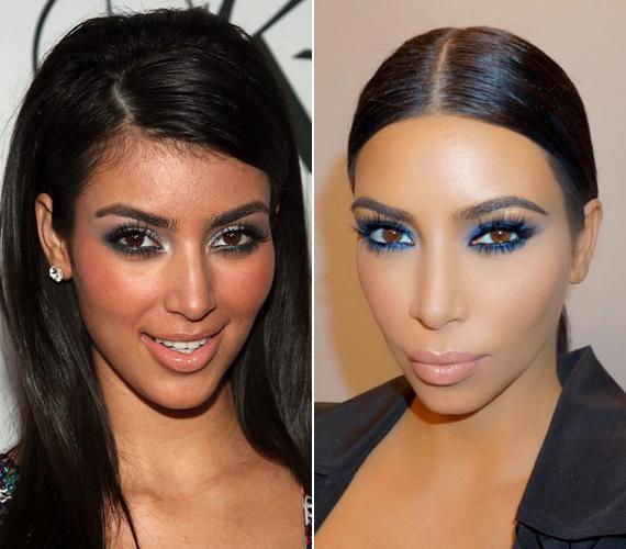 Az OK magazin felkért egy plasztikai sebészt, hogy mondja el véleményét Kim arcának változásairól, aki elárulta, szerinte a sztár megműttette az orrát, illetve számos bőrszépítő, bőrfiatalító kezelésnek vetette alá magát, hiszen korábban sokkal egyenetlenebb, problémásabb és sötétebb volt az arcbőre.