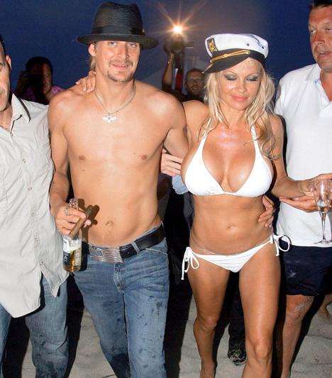 Pamela Anderson és Kid Rock  A Baywatch másik sztárjának sem volt szerencséje házasságaival. Tommy Lee exfeleségeként 2006 júliusában egy a francia riviéránál horgonyozó yachton hozzáment a rockzenész Kid Rockhoz. Négy hónap múlva, novemberben a szőke ciklon a válást kezdeményezte.  Kapcsolódó cikk: Képtelen abbahagyni! Pamela Anderson 43 évesen is átlátszóban szaladgál »