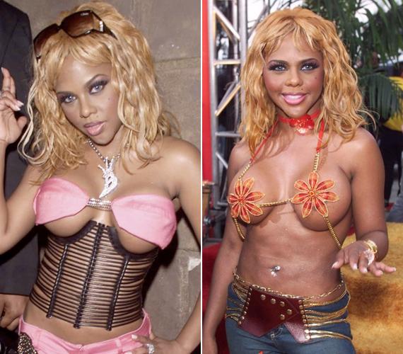 Évek óta meghökkenti az embereket, nemcsak a plasztikai műtéteivel, hanem az öltözködésével is.