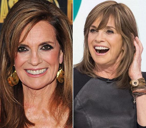 A legfrissebb képei tanúsága szerint már nem használ annyi botoxot, mégis jobban néz ki, mint 40 évvel ezelőtt.