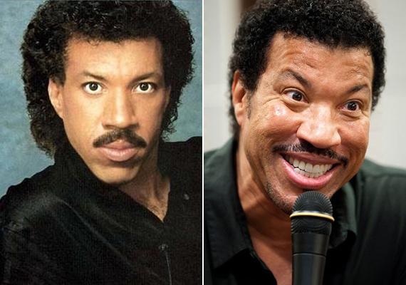 Lionel Richie úgy fest, mintha két oldalról húznák az arcát, minden irányba. A látvány nem fiatalos lett, hanem ijesztő.