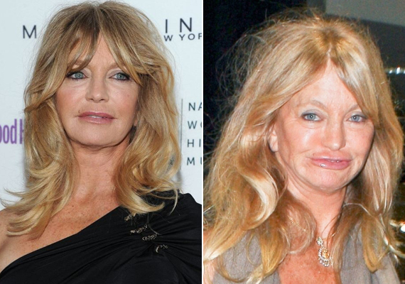 2011-ben még jól nézett ki, ám 2012 novemberére nagyon elcsúfították a műtétek Goldie Hawnt.