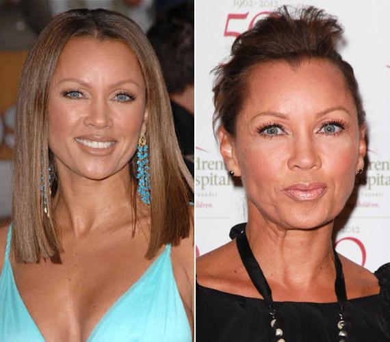 Vanessa Williams évente több botoxkezelést is kap, ennek köszönhetően arca teljesen megváltozott az elmúlt tíz év során.
