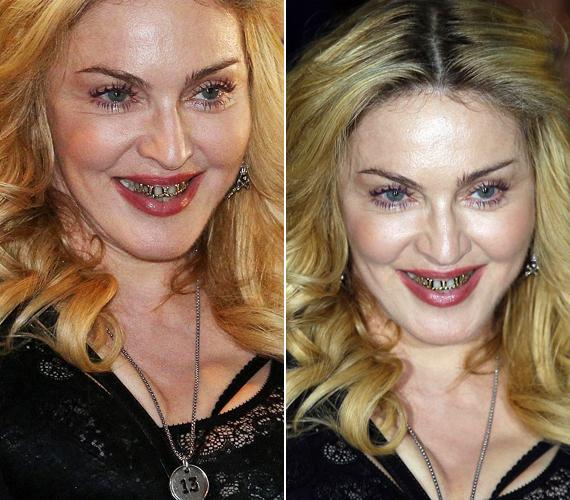 Rómában inkább elijesztette a rajongókat Madonna az arany fográccsal.