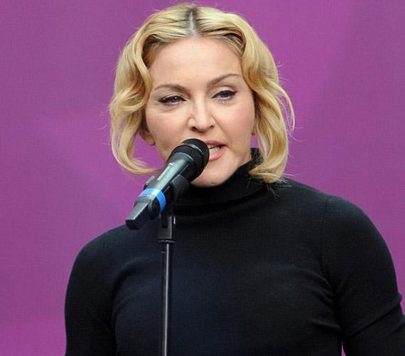 Madonna egy egyszerű, fekete felsőben jelent meg, így ruházatával nem vonta el a figyelmet megduzzadt arcáról.