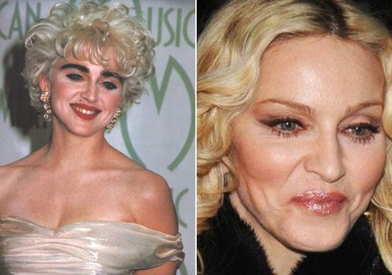 Madonna szinte már mindent átoperáltatott magán, a 30 évvel ezelőtti fotóján látszik, hogy mennyire más volt az arcberendezése. A legutóbbi plasztika során arcimplantátumokat helyeztetett be, ezeknek is köszönhető a drasztikus változás.