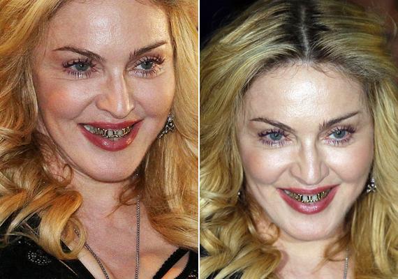 Nem ez az első alkalom, hogy Madonna ilyen fogékszerrel lepi meg a rajongókat. Először tavaly, Rómában sokkolta az embereket ezzel. Elmondta, ha ezt viseli, sérthetetlennek érzi magát.