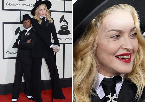 Madonna arcán jól látszik a plasztikai beavatkozás, arcimplantátumot kapott.