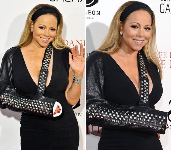 Mariah Carey két éve egyik klipjének forgatása során szenvedett balesetet, aminek következtében hónapokra be kellett gipszelni a karját. Egy rendezvényen is így jelent meg, kötését szegecsekkel díszítette.