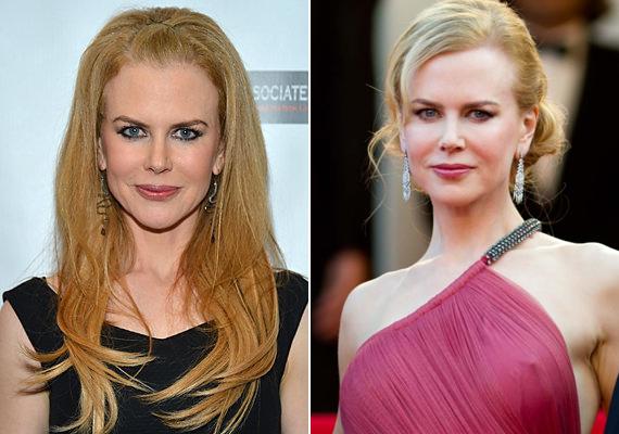 Nicole Kidman sokáig a rendezők kedvence volt, azonban mióta rákapott a botoxra, egyre kevesebb szerep jut neki. Nem véletlenül: a színésznőt mostanság jégkirálynőnek csúfolják, hiszen szinte teljesen eltűnt a mimikája és megfagyott az arca.