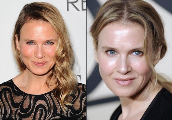 Renée Zellweger mindenkit meglepett, amikor tavaly teljesen új arccal jelent meg a vörös szőnyegen. A botoxtól és a ráncfelvarrástól szinte ijesztő lett a külseje.