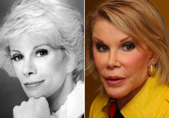 Joan Rivers sem tud betelni a botoxszal és a plasztikai beavatkozásokkal.