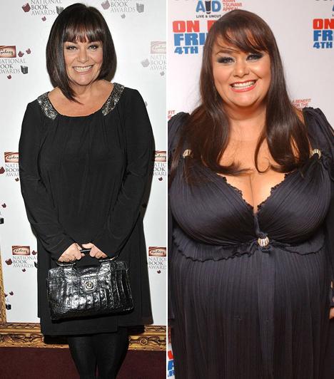 Dawn French                         A színésznő először 50 kilót fogyott, majd a jojó-effektus miatt 60 kilót szedett vissza magára.                         Kapcsolódó cikk:                         Ennyire elhagyta magát! 60 kilót hízott a népszerű színésznő