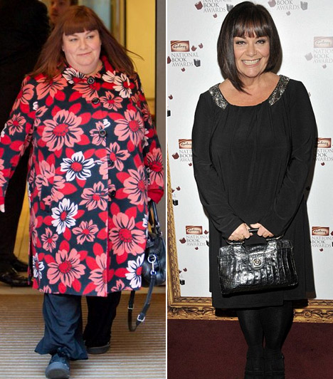 Dawn French  A brit származású színésznő, szövegíró egész életében túlsúlyos volt, ezért mindenkit meglepett, hogy körülbelül egy év alatt közel 50 kilótól szabadult meg.