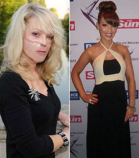 Katie PiperA brit modell és műsorvezető arcát 2008-ban öntötték le savval, és bár sokan kételkedtek felépülésében, nemcsak bőrét, hanem látását is sikerült helyreállítani.
