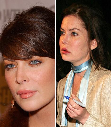 Lara Flynn Boyle  A Twin Peaks gyönyörű színésznője alaposan szétműttette arcát az elmúlt évek során, mostani külsejét látva pedig már biztosan nem csapna le rá a nőcsábász Jack Nicholson.  Kapcsolódó címke: Lara Flynn Boyle »
