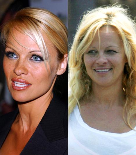 Pamela AndersonA kilencvenes évek egyik legnépszerűbb szexszimbólumán jócskán meglátszik az idő, amit talán el kellene fogadnia. Nagyon úgy fest, hogy sosem lesz már a régi, hiába a sok plasztika.Kapcsolódó címke:Pamela Anderson »