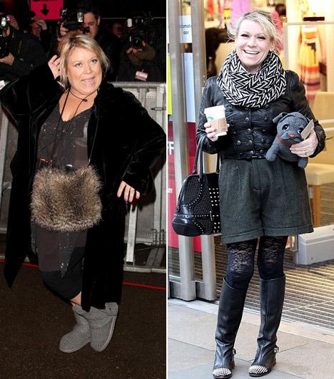 Tina MaloneA 49 éves angol színésznő pár év leforgása alatt nem kevesebb, mint 63 kilót adott le, miután gyomorszűkítő műtétet hajtottak végre rajta.