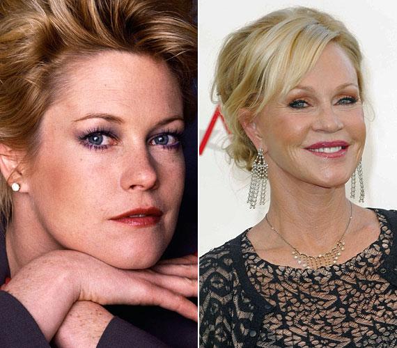 Az 54 éves színésznőtől nem áll távol a plasztikai sebészet: arca az évek során jelentős átalakuláson esett át.