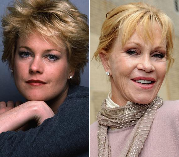 A bal oldali képet a kilencvenes években lőtték a színésznőről, míg a jobb oldalit idén tavasszal, egy divathéten. Bár a sztár már tavalyelőtt felhagyott a plasztikával, ez sem volt elég, hogy megmentse házasságát Antonio Banderasszal.